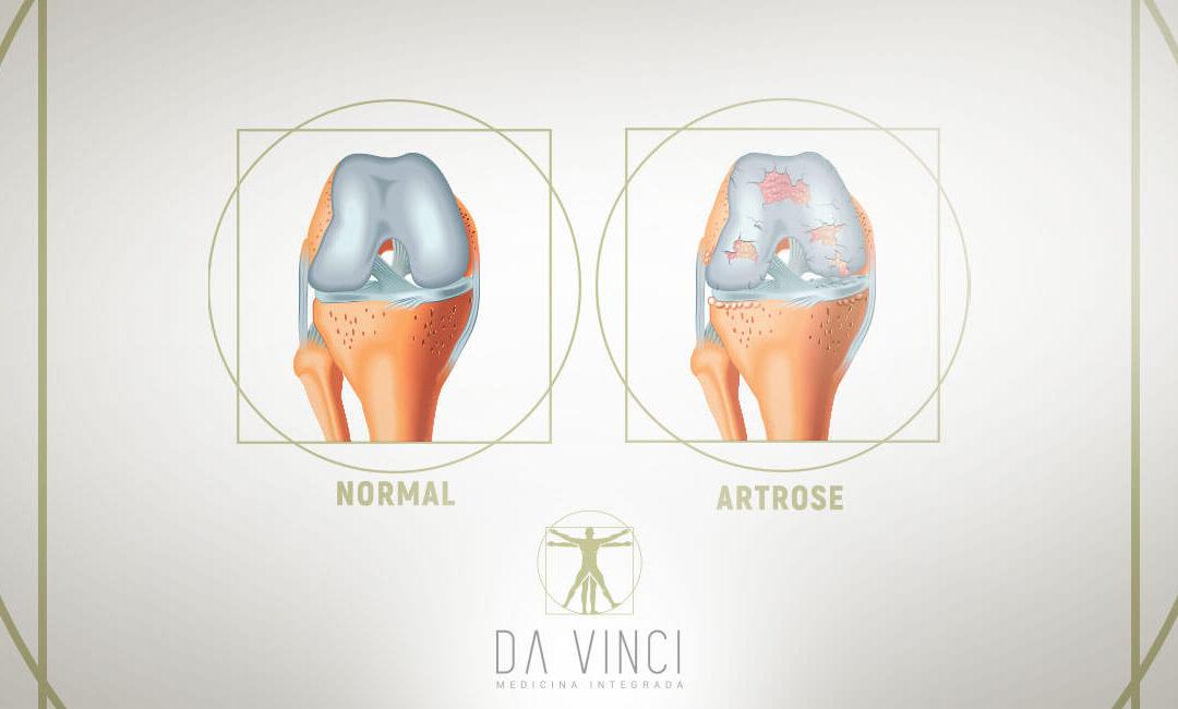 Como tratar a Artrose no joelho
